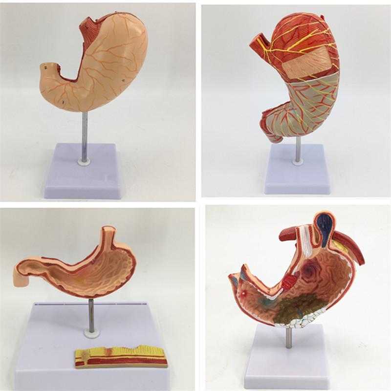Pathological gastric model human gastric perforation pathological gastric model