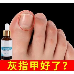 灰指甲专用液脱甲膏正品抑菌冰醋酸日本非药去增厚灰甲净官网xx