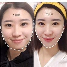男女通用去國字臉大臉克星臉大不求人秒變瓜子臉小臉神器