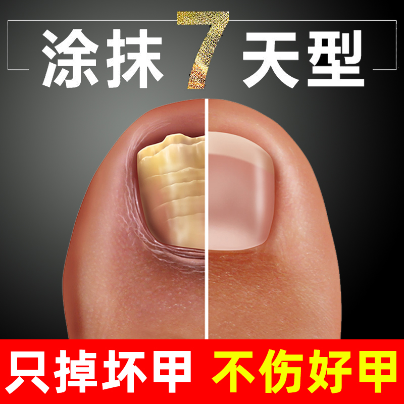 Nail antibacterial solution nail remover for removing hand and foot toe nail thickening nail special ointment for external use of glacial acetic acid