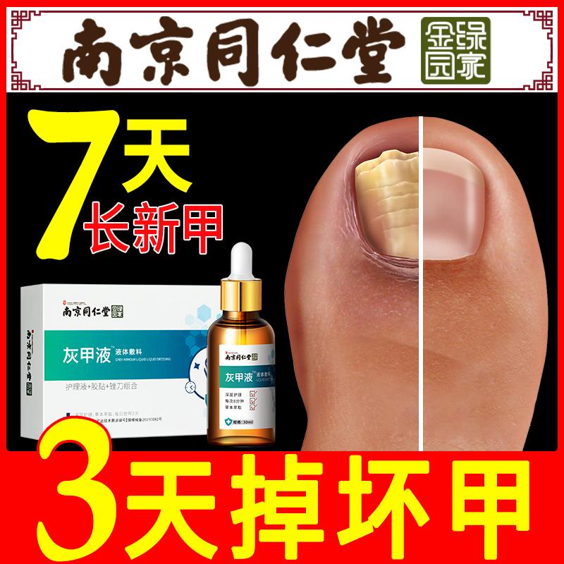 治疗灰指甲专用药去除增厚抑菌液软甲膏灰甲净日本正品脚趾外用