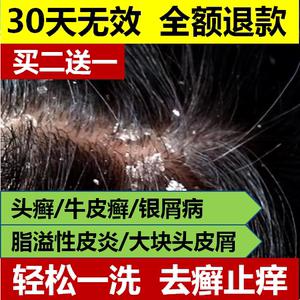 领5元券购买洗发水治头部牛皮癣银屑病去头癣头皮癣脂溢性皮炎止痒无激素药膏