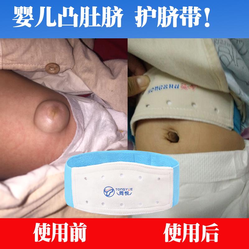 嬰兒凸肚臍帶透氣護臍帶兒鼓肚臍綁帶薄兒童氣肚臍06月寶寶疝袋貼