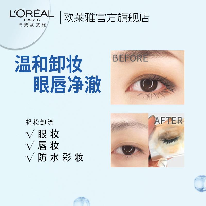 欧莱雅眼唇部卸妆液温和不刺激深层清洁卸妆水眼唇专用女学生正品