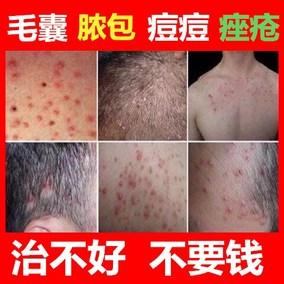 毛囊炎治疗毛囊炎头皮头部头脸部