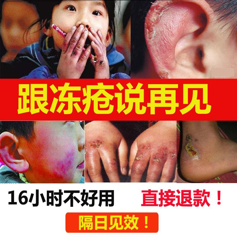 冻疮膏止痒冻伤防护手足脚后跟干裂手部儿童成人防冻防裂止痒冬季