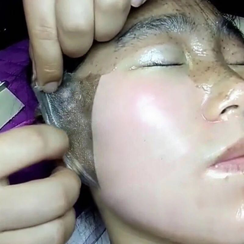 Tiktok: tear the face, clean the pores, face the dirty stuff, and tear the massage cream to 1 to 1.