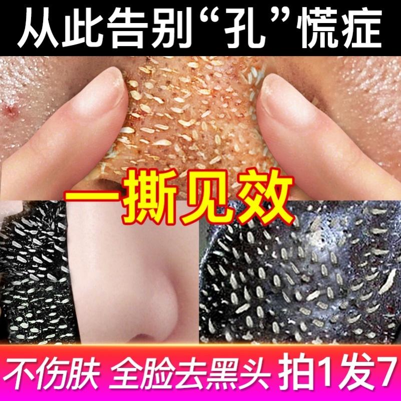 去黑头粉刺闭口撕拉面膜深层清洁毛孔收缩排毒泥膜男士专用涂抹式