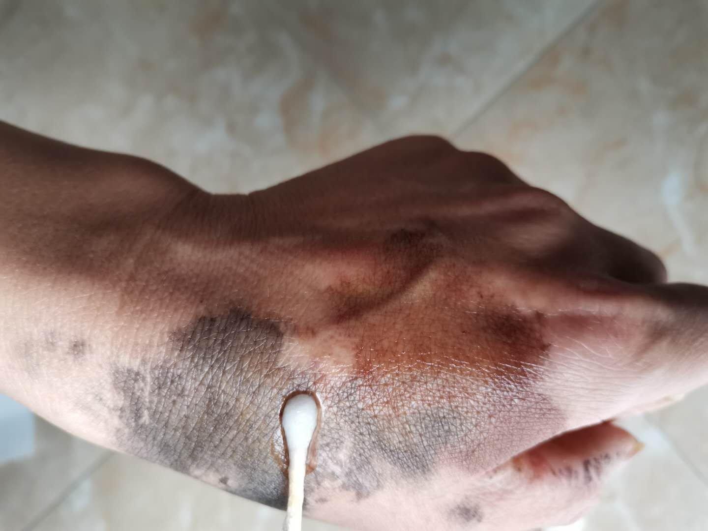 一擦净去除染发剂清洗剂染发膏残留污渍清除祛除剂皮肤染膏一抹净