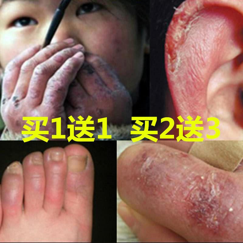 冻疮膏日本止痒冻伤膏手足冻必治手脚耳脸部儿童成人防裂防冻止痒