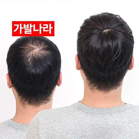 真发头顶遮盖白发轻薄补发片女头发稀少假发局部发顶补顶蓬松无痕