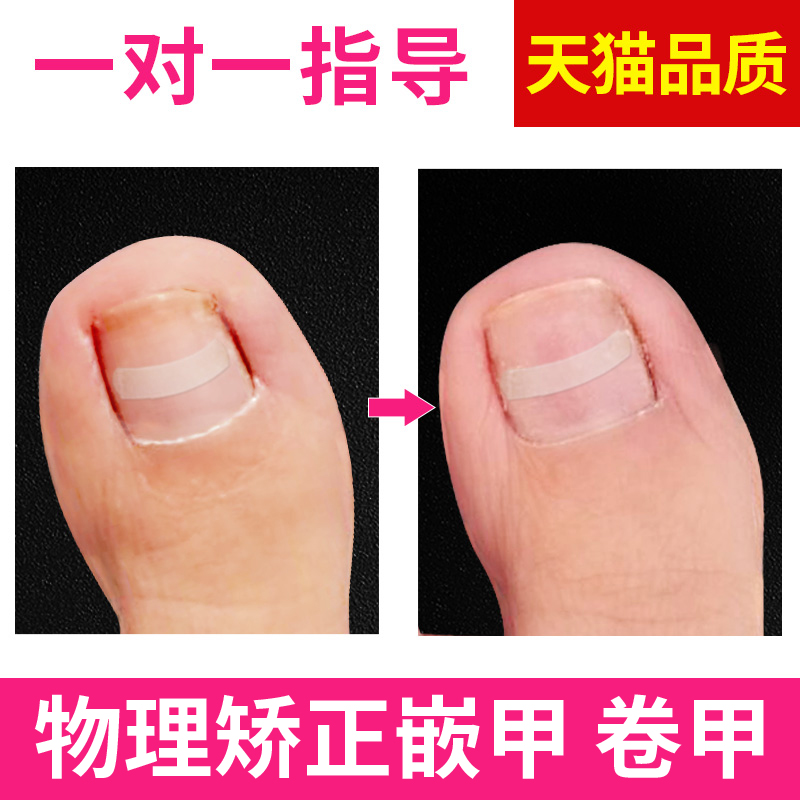 Nail groove applicator patch toenail special nail clipper tool flattening suit