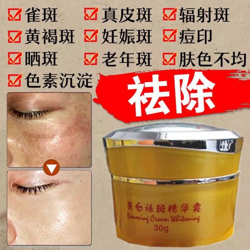 去斑美白祛斑霜正品脸部特效快速七天淡化色斑遗传雀斑黄褐斑男士