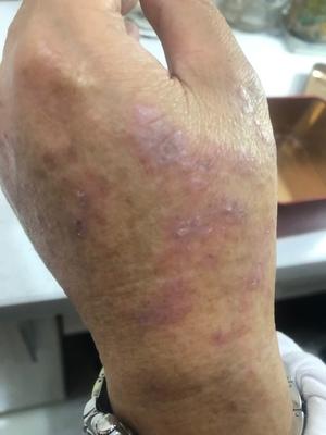顽固湿疹反复痒的睡不着 抹上芊芙霜第二天就不痒了 真好用!