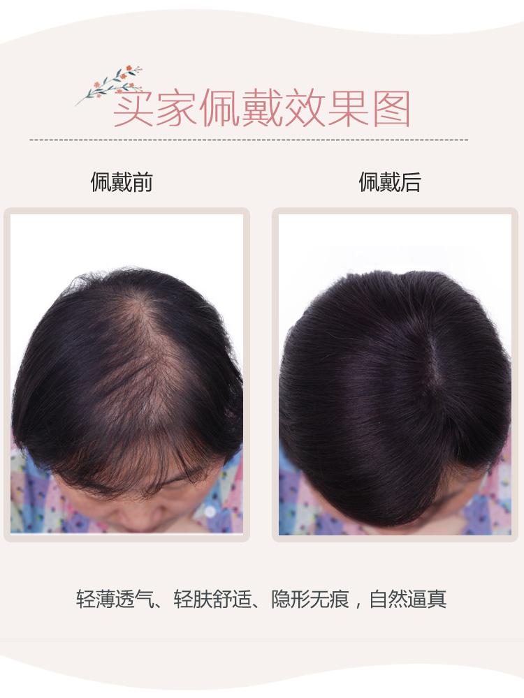 头顶补发片真发发顶隐形无痕补发块遮盖白发递针假发片短发假发女