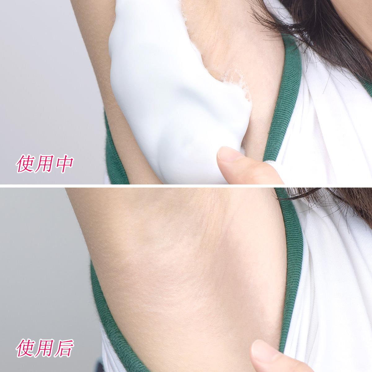 日本Epilat嘉娜宝脱毛慕斯 去腿毛腋下泡沫脱毛膏温和无刺激120g