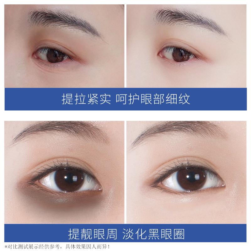 【拍3件】植妍芬海洋燕窝贵妇眼膜补水保湿改善黑眼圈 - 图2