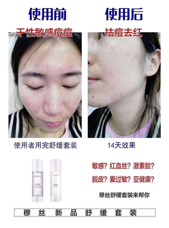 舒缓 改善红雪丝 修复敏感肌肤 穆丝化妆品正品舒缓修复乳 MOONSE
