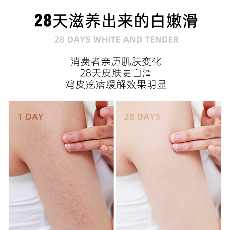 磨砂膏身体去鸡皮去角质小黄灌全身美白亮肤去除疙瘩毛囊持久留香 - 图0