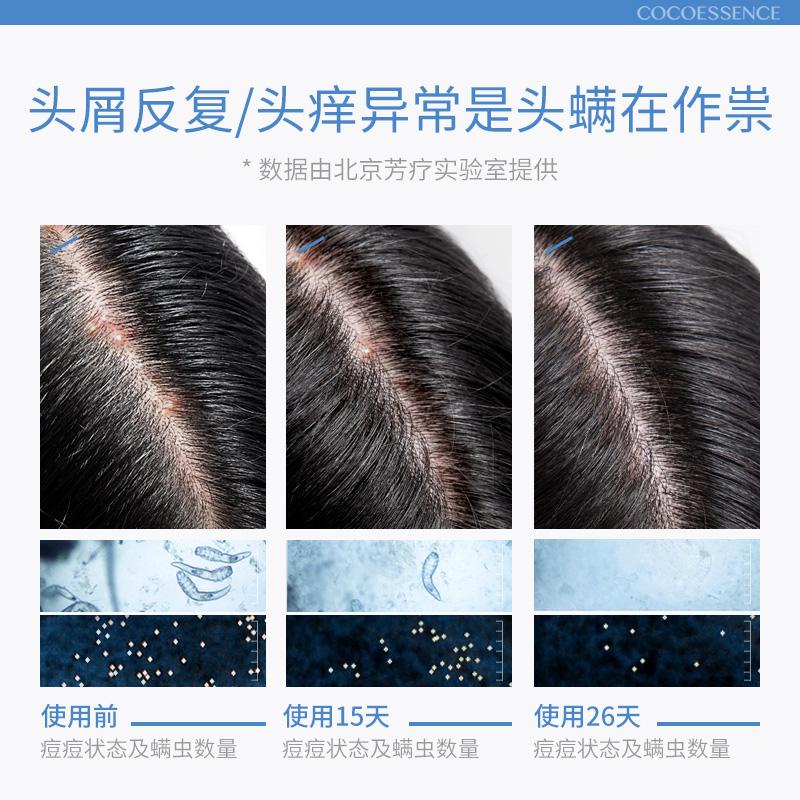 遇见香芬氨基酸除螨洗发水去螨虫头皮屑护理头螨毛囊清洁硫磺软膏