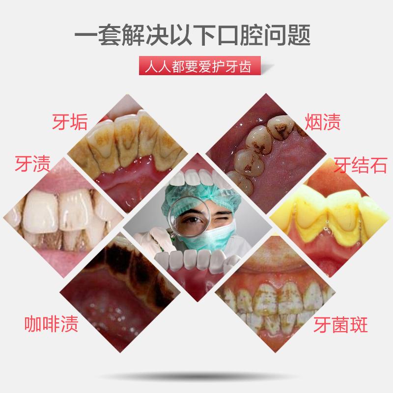 牙结石去除器牙齿清洁工具洗牙牙石清除剔牙神器除牙垢刮牙渍家用