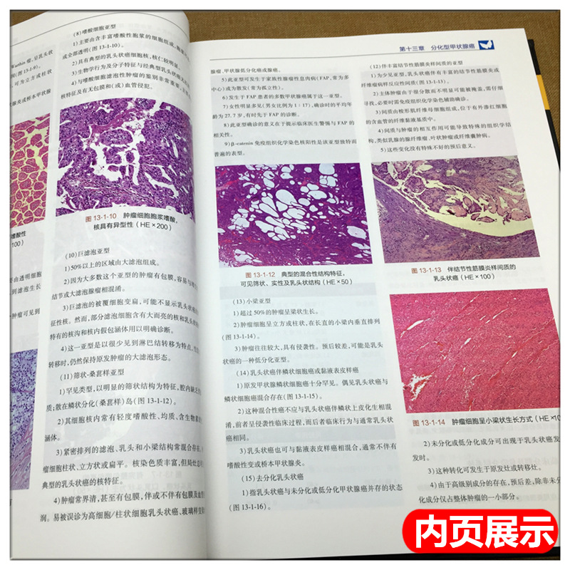 9787117265836 人民卫生出版社 肿瘤学医学书籍 主编 葛明华 高明 甲状腺肿瘤学 现货正版