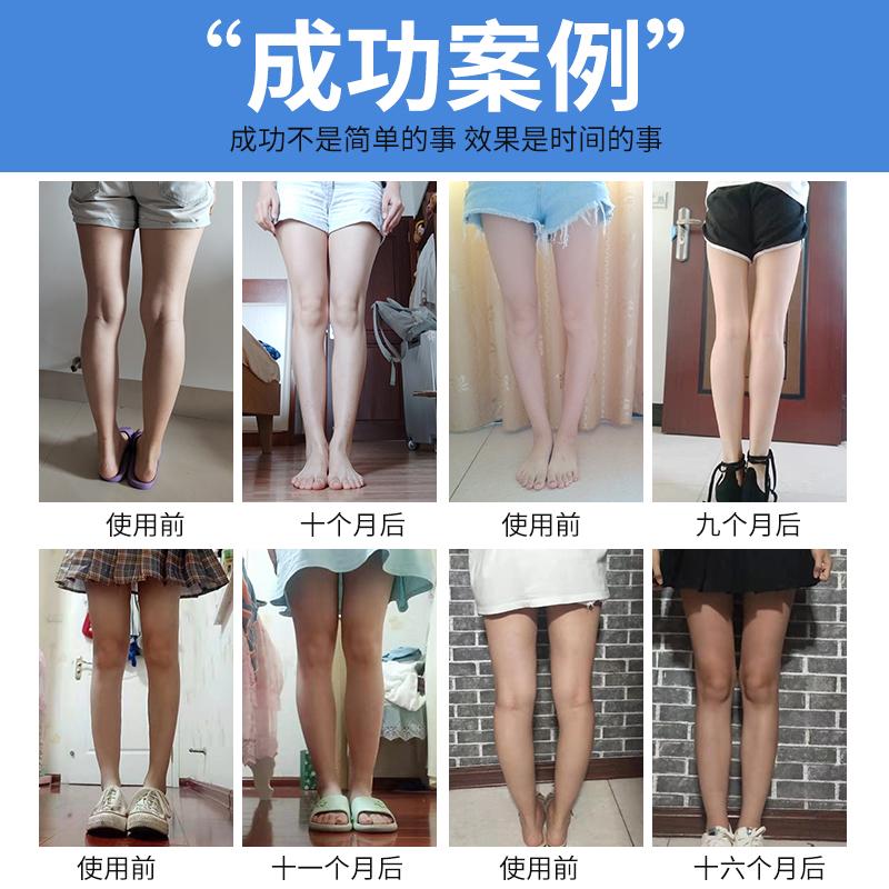 o型腿矫正鞋垫x型腿足外翻内外八字罗圈腿直腿纠正器腿型神器儿童