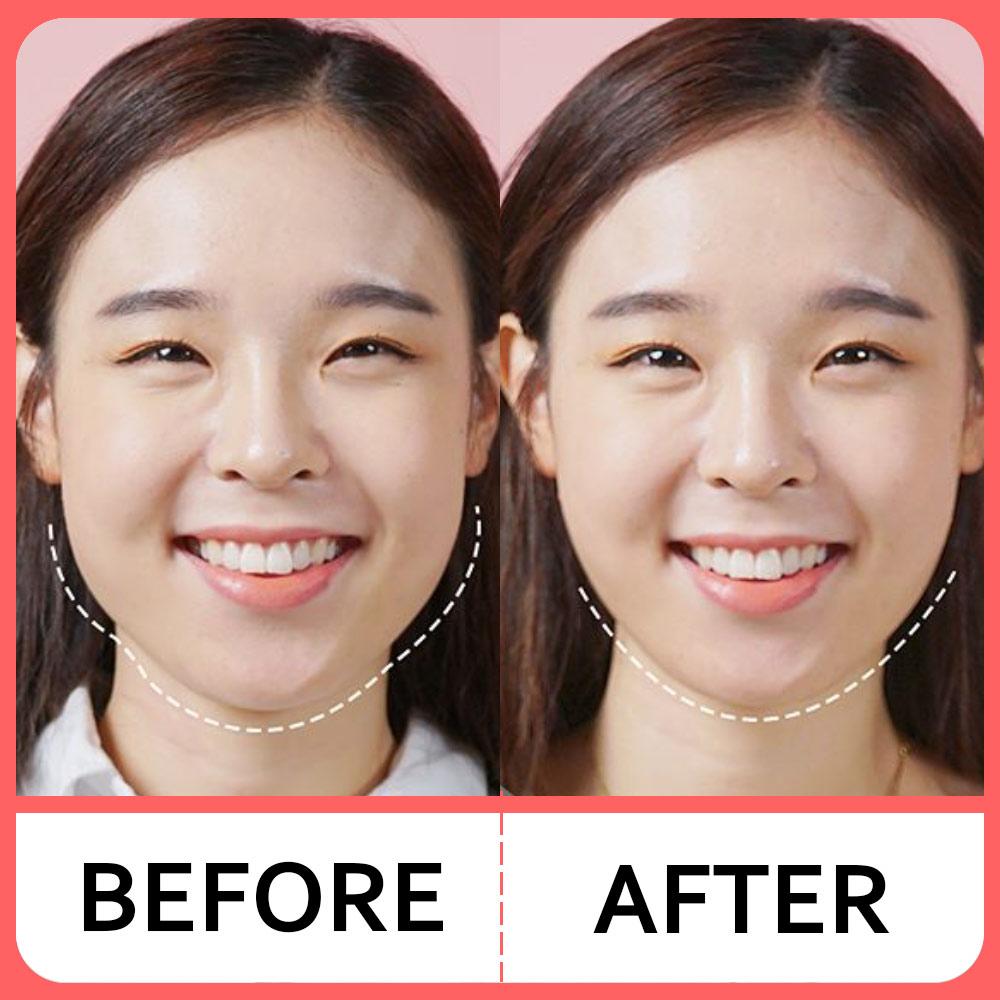 韩国headrang瘦脸神器V脸绷带矫正下颌骨咬肌颧骨缩小不对称仪器