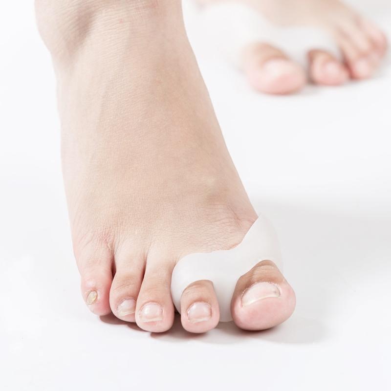 大脚骨拇指外翻矫正器双环分趾器重叠脚趾分离器可穿鞋日夜用日本