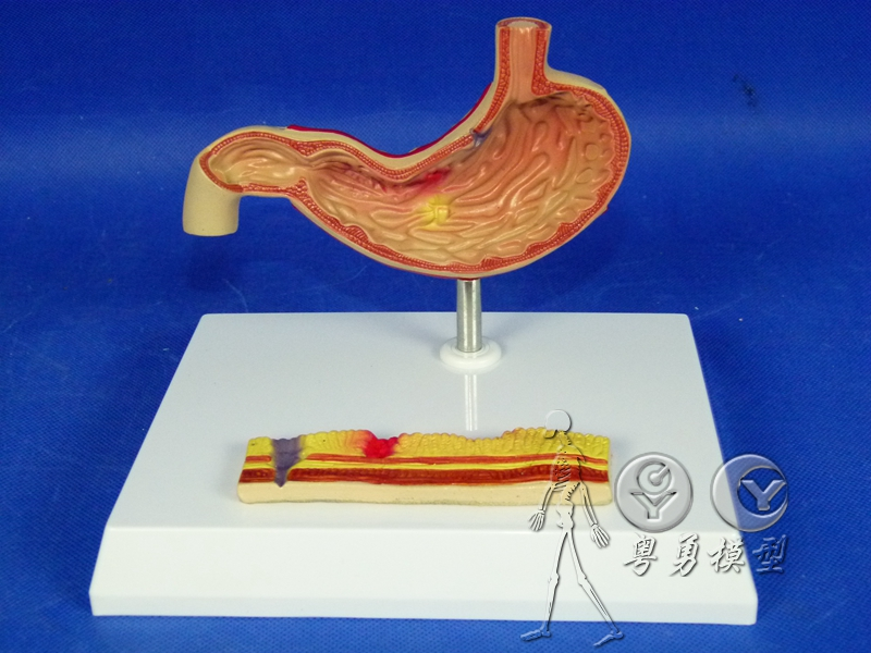 Buy Huamao Science Stomach Stomach Anatomical Model Of Medical