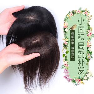 假发片小一片式女无痕真人发丝发际线假发贴前额补发头顶蓬松直发