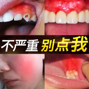 快速治牙疼牙痛神器特傚喷剂神经立可停消炎蛀牙上火牙龈肿痛蛀虫