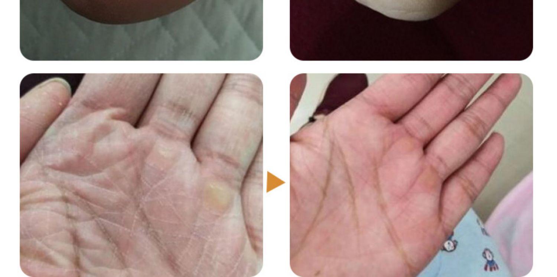 马油脚后跟干裂龟裂冻疮膏防裂防冻护手足裂口开裂愈合霜皲裂修复商品详情图