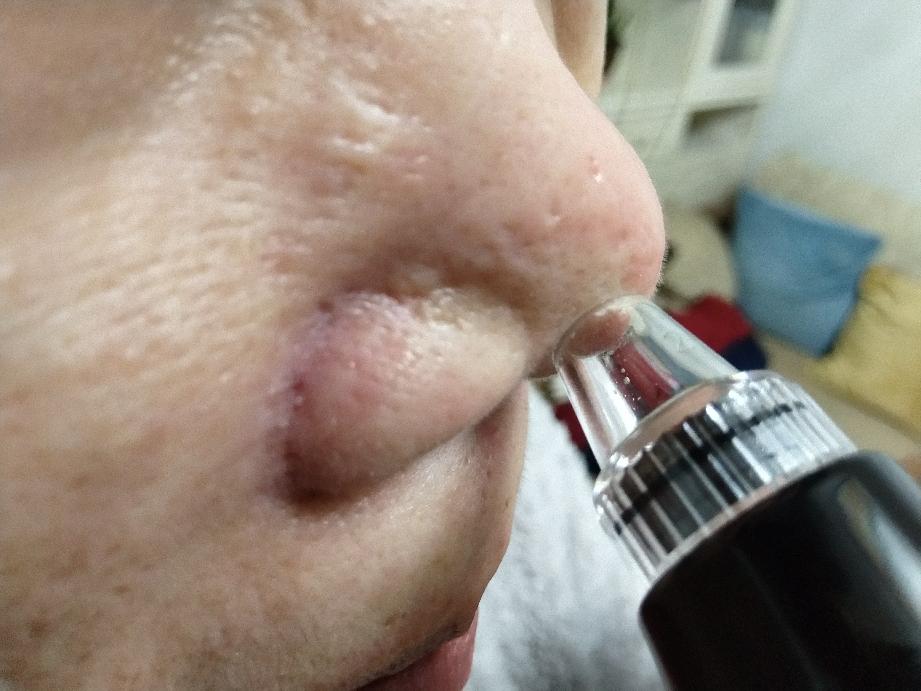 第1次使用吸黑头仪器,粉刺白头很多被吸出来了