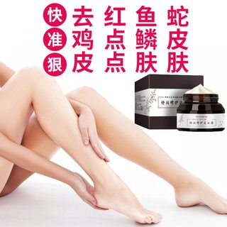 Follicle repair skin cream chicken skin to remove dead skin exfoliating itchy pores Body Lotion