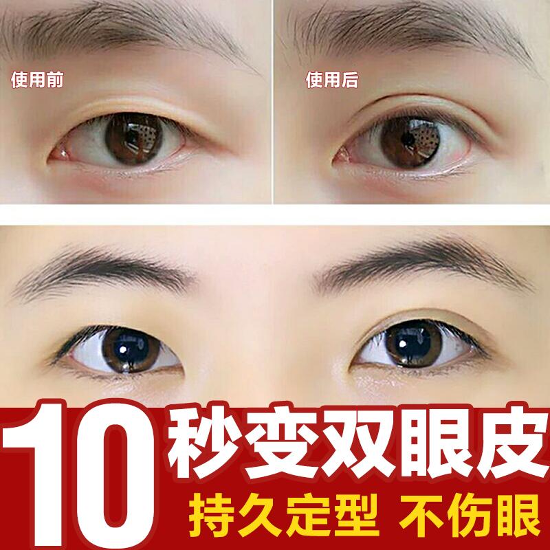秒变双眼皮精华液定型速干男女神器网红快手正品胶贴去肿泡眼永久