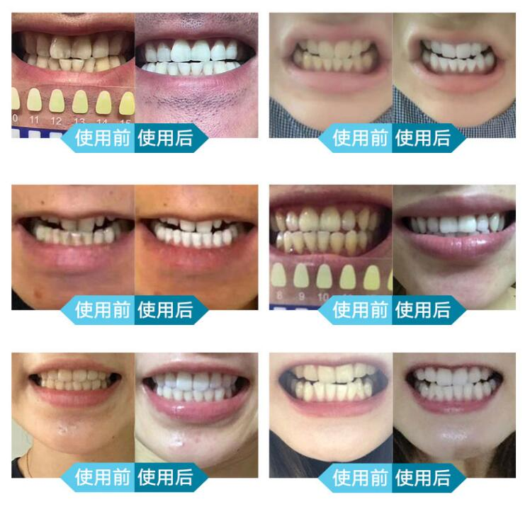 whitening light blue teeth large lacues device health products australia redapple