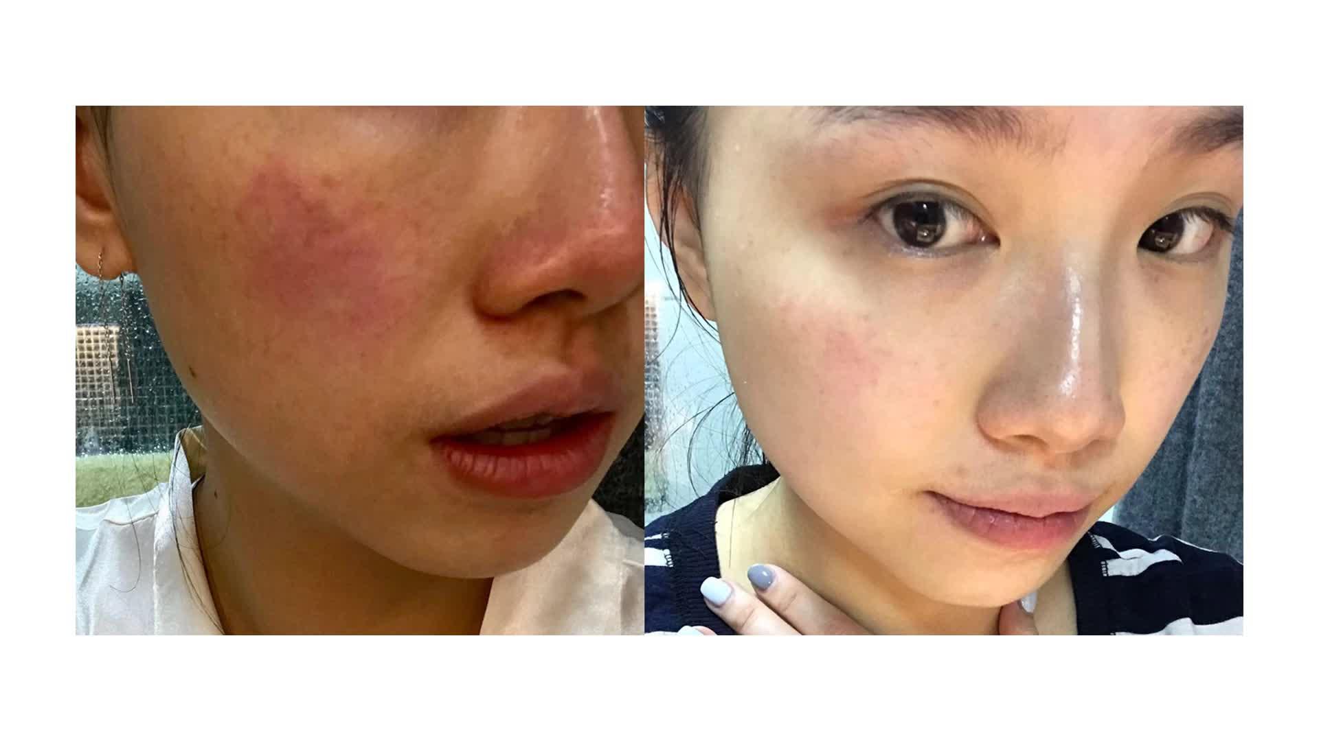 Exfoliating face whitening skin peeling gel