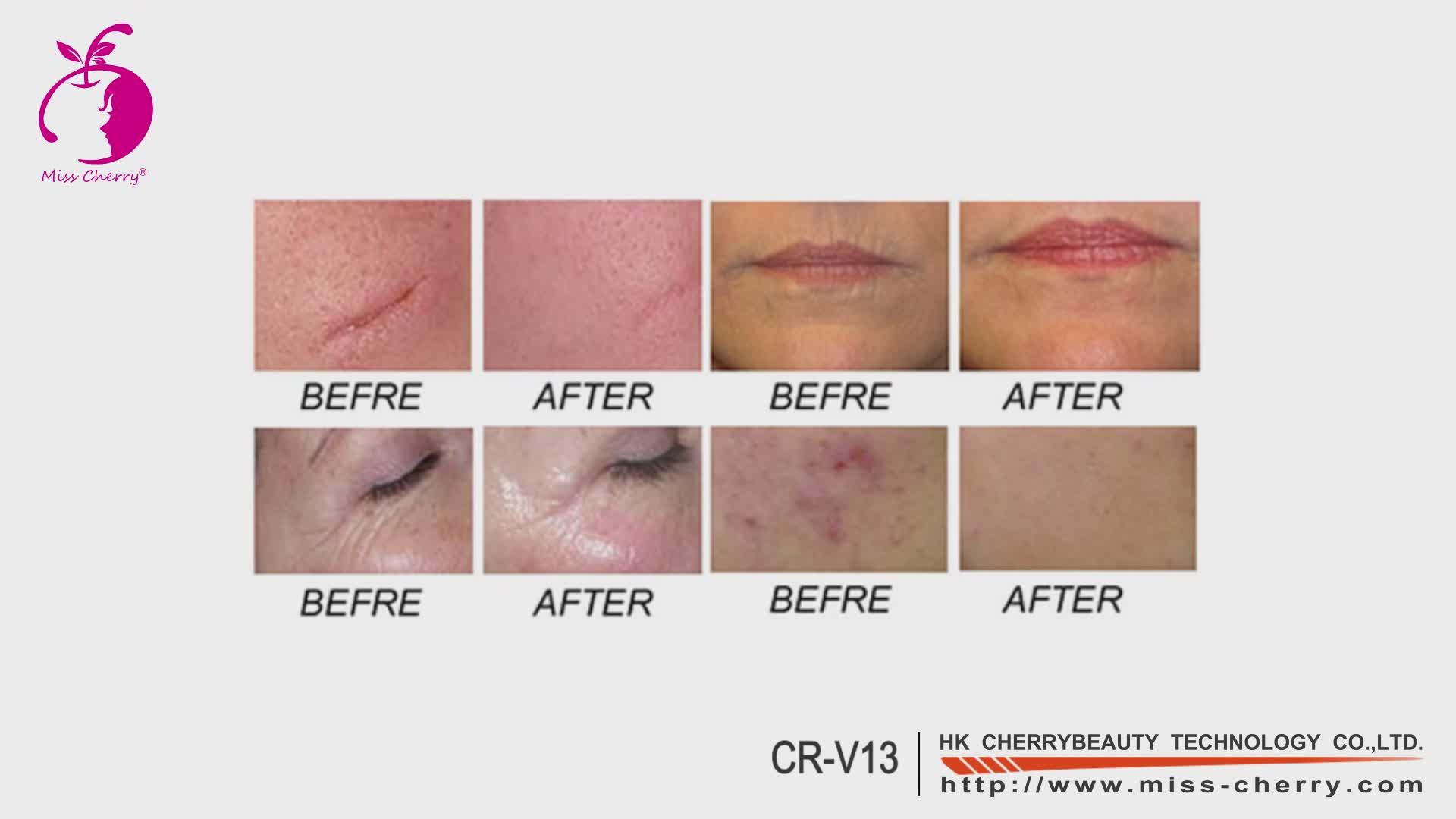 Novo design de rejuvenescimento rf laser co2 CE medical passou aperto rápido máquina de co2 laser cicatriz acne removedor portátil