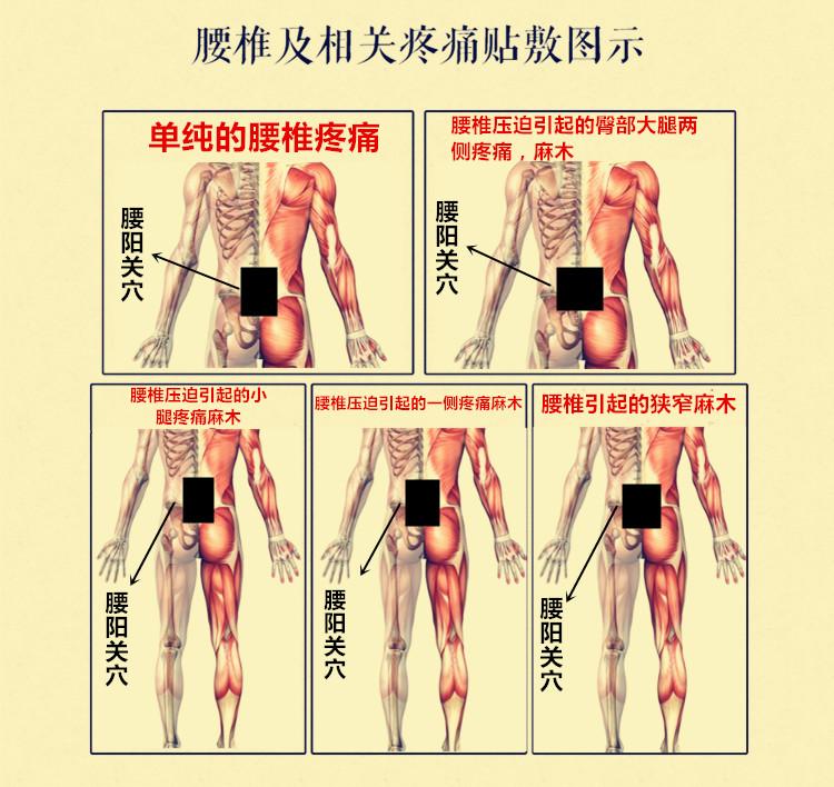 坐骨神经疼腰突颈椎神经压迫痛古法布贴黑膏贴膏腿疼膏贴腰椎腰痛详细照片
