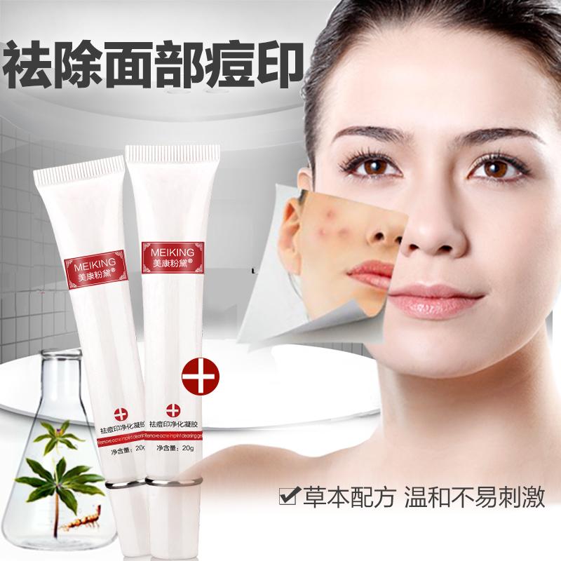 美康粉黛祛痘印凝胶1支 淡化痘印凹洞舒缓修护改善皮肤