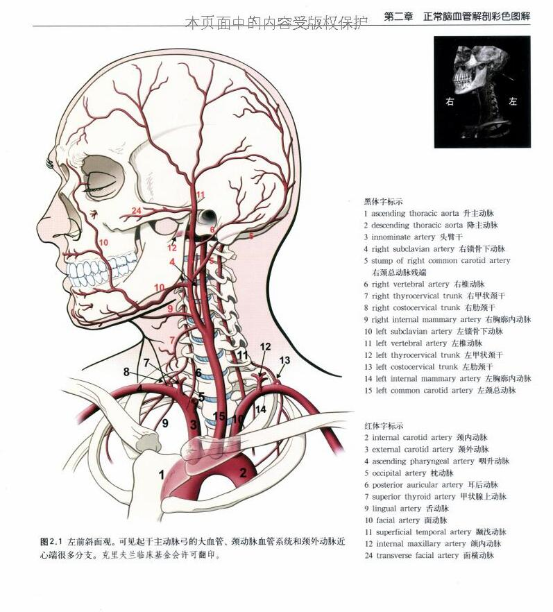 What is Cerebrovascular Disease?