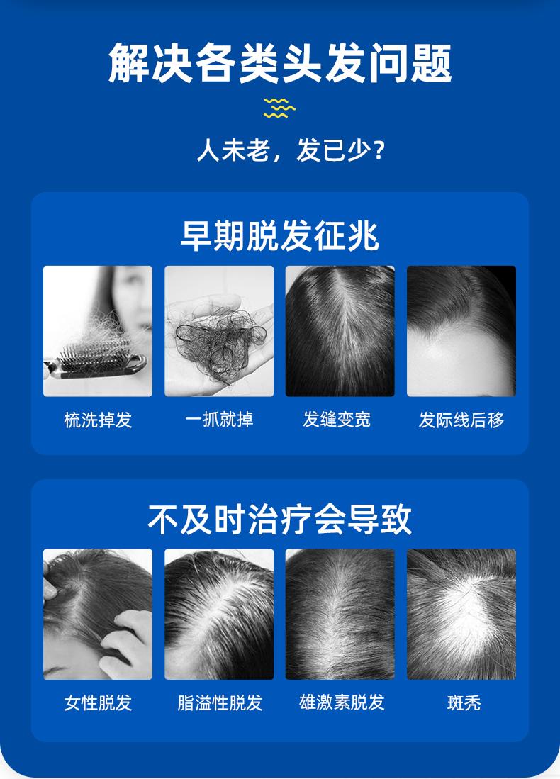 国药OTC 蔓狮 米诺地尔酊 防脱生发喷剂 40ml 治疗斑秃管用 图3