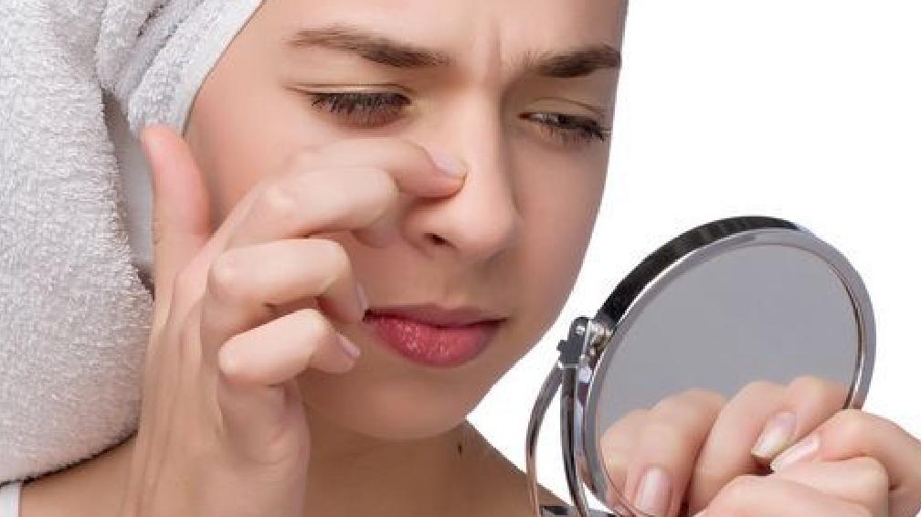 让人头疼的黑头,到底该如何清理呢?