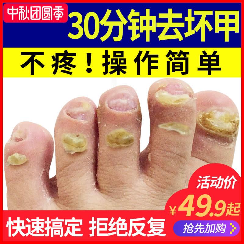 Онихомикоз для Жидкая мягкая паста для ногтей оригинал удаляя толстая Антибактериальная ледяная уксусная кислота. Пена для ног.