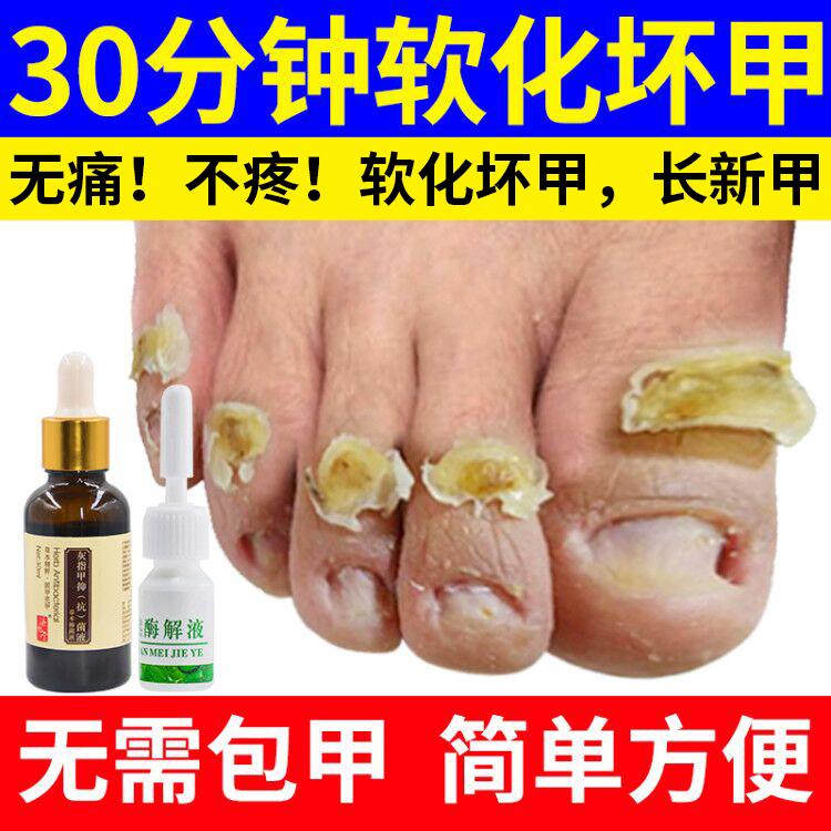 灰指甲专用液软甲膏贴抑菌液药去除增厚脚趾亮甲液正品官网灰甲净