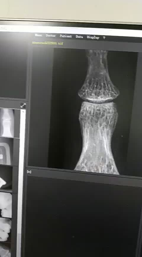 Digital Wireless flat panel x ray detector for vet and human use