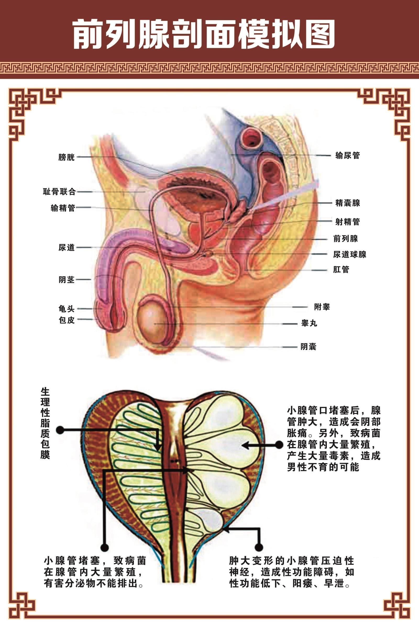 男性科v医学医学前列腺医院示意图挂图人体器官膀胱解剖图系统布置
