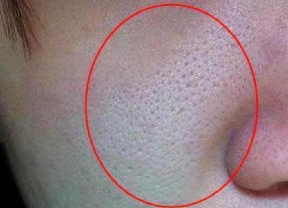 脸上毛孔粗大,原来是螨虫在作怪!