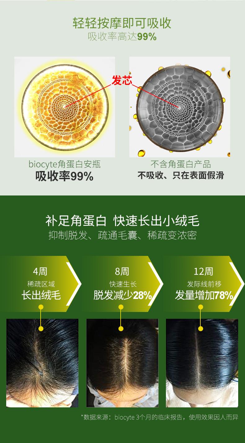 法国biocyte生发安瓶角蛋白活化真皮育发防脱修复受损发质正品 产品中心 第6张